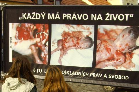 Výstava proti potratům probíhá v těchto dnech v Roudnici nad Labem. Foto: MojePodřipsko.cz