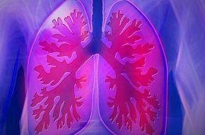 Celorepublikový screening pro nepoznané pacienty. Jste kuřák?